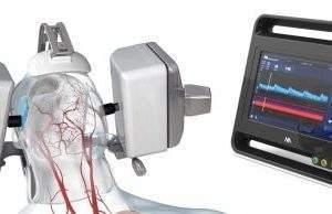 FDA approves Neural Analytics' robotic ultrasound system