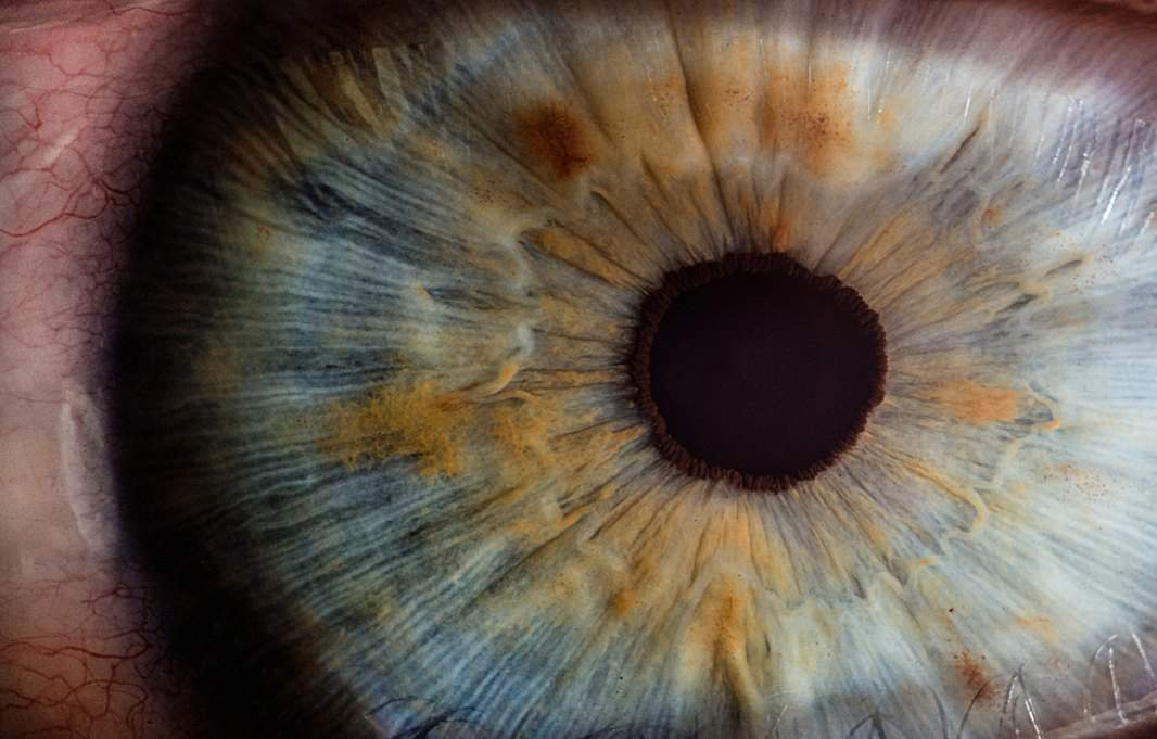 RadianceTx raises initial funding for glaucoma therapy