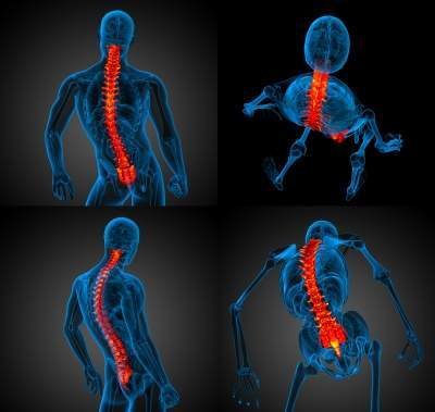 NuVasive, Siemens partner to advance clinical outcomes in minimally invasive spine surgery