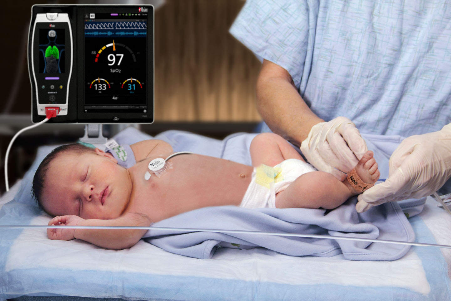 FDA approves Masimo's rainbow acoustic monitoring RAS-45 sensor for infant patients