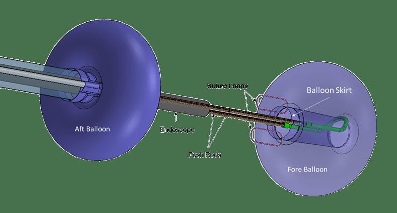 suture-loop-technology
