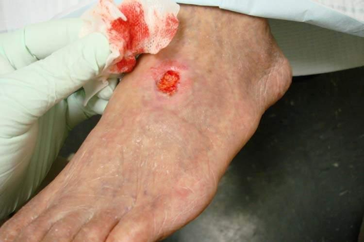 Arterial_ulcer_peripheral_vascular_disease