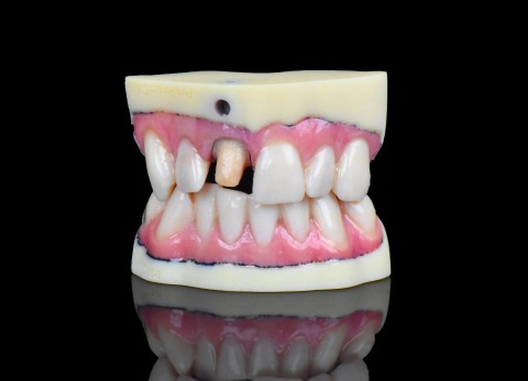 Stratasys brings full-color digital dental impressions to life