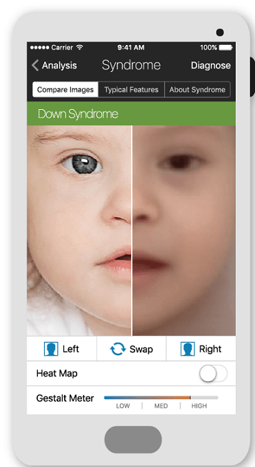 Face2Gene app for rare genetic disorders