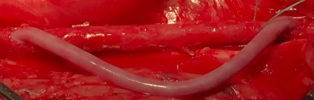 Vascudyne tissue material