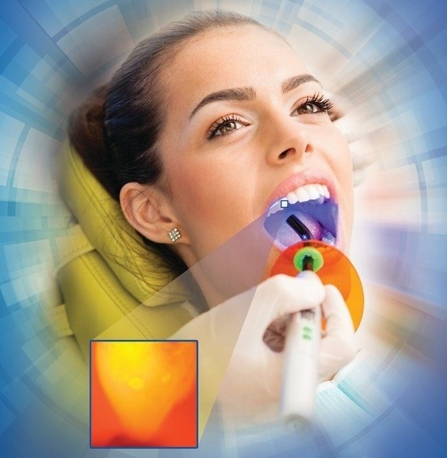 Using curing light to identify early caries