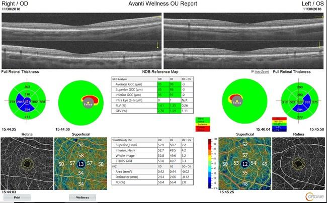 AngioWellness-Report-OU