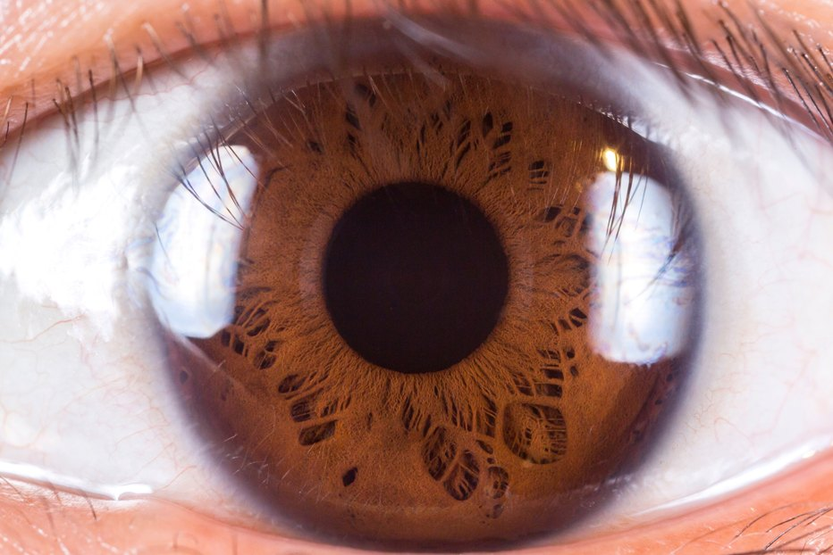 Eyenuk's AI Eye Screening System gives positive results in clinical trial
