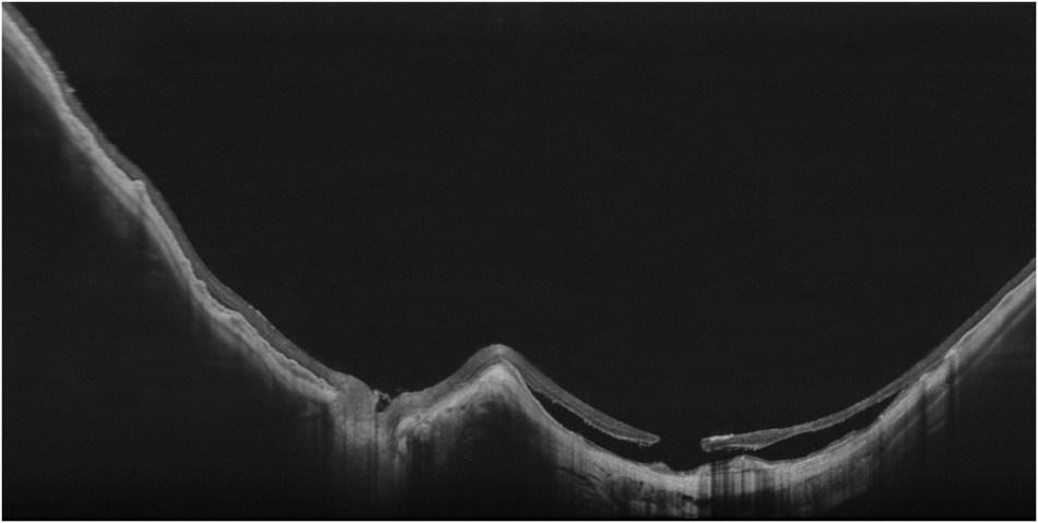 ULTRA-HD-Spotlight-of-a-Myopic-Staphyloma