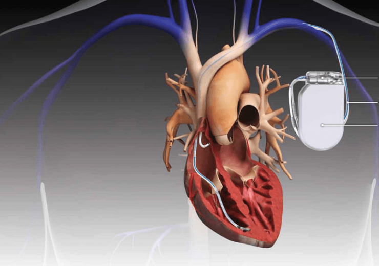 Philips' new lead management tool helps clinicians treat patients with cardiac implants
