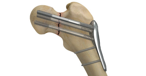Smith & Nephew introduces new Conquest FN femoral neck fracture system