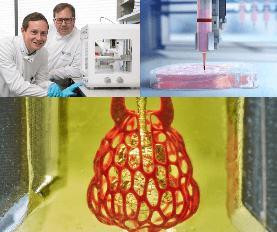 Four medical breakthroughs 3D bioprinting is having in the healthcare industry
