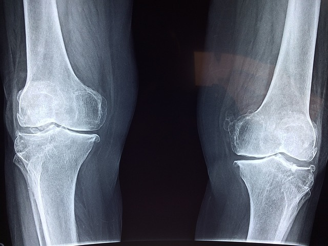 New research demonstrates advantages of ExactechGPS for Knee and Shoulder joint replacement