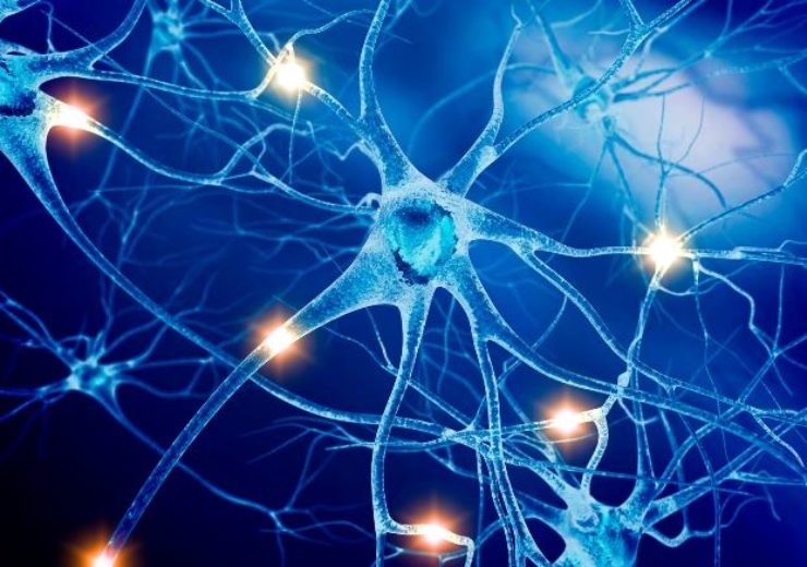 Feinstein Institutes trial shows potential of bioelectronic medicine for stroke patients