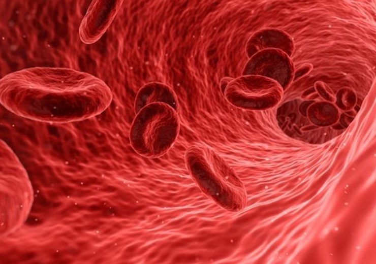Q-Sera's new blood clotting technology granted patent in US