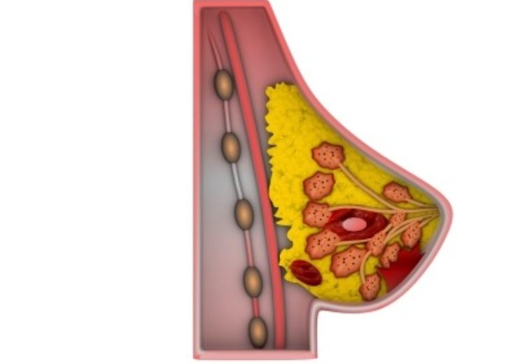 Lumicell enrolls patients for Phase C feasibility trial for breast cancer surgical guidance solution