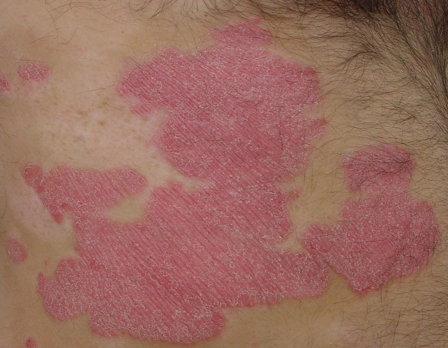 Psoriasis awareness month: Profiling the latest treatment methods to prevent the disease