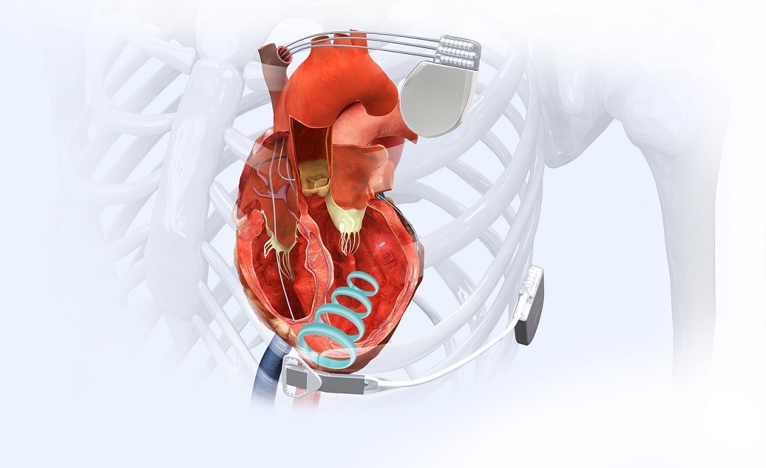 The WiSE Cardiac Resynchronization Therapy CRT System