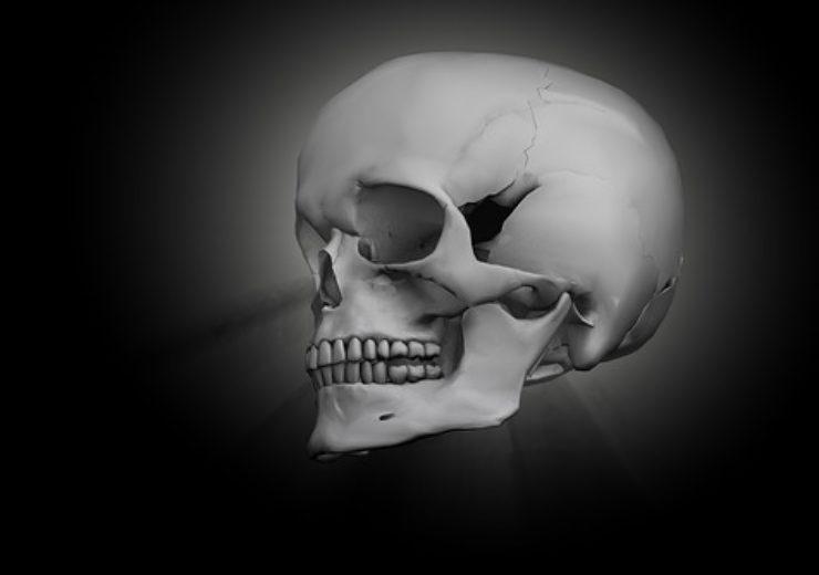 skull-1557446_640