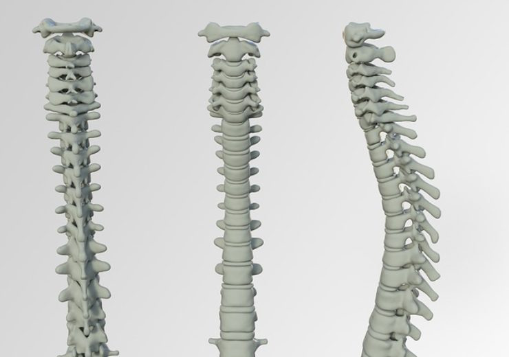 Carevature offers cutting-edge Dreal Technology for spine surgeons at Scripps Health