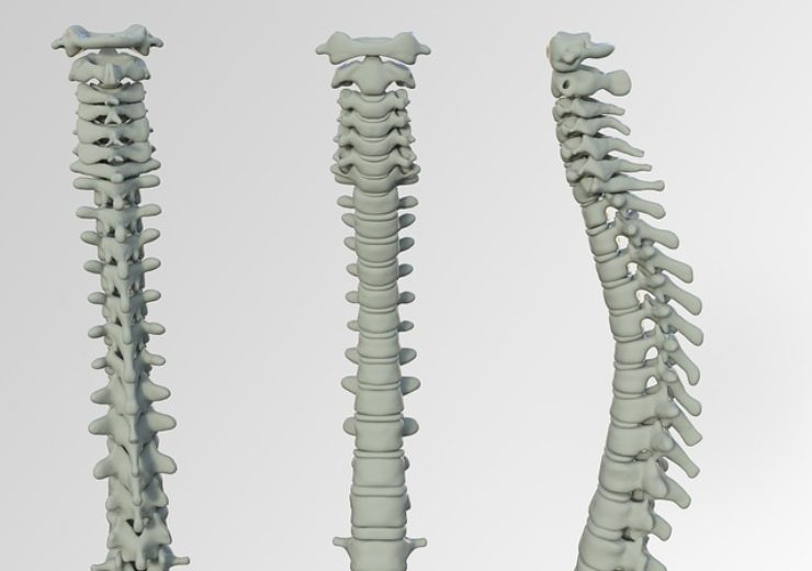 Alphatec launches SingleStep to advance InVictus MIS spinal fixation system