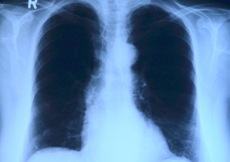 New lung cancer diagnostic method to predict therapy response developed in US