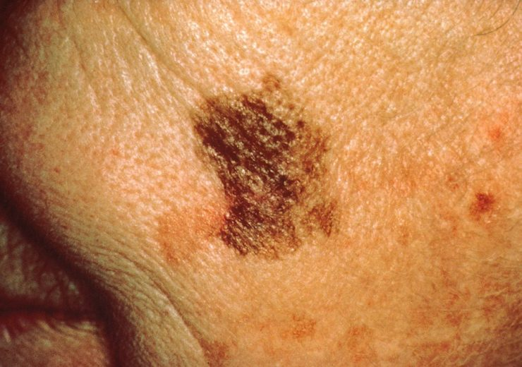 1280px-Melanoma_with_diameter_change