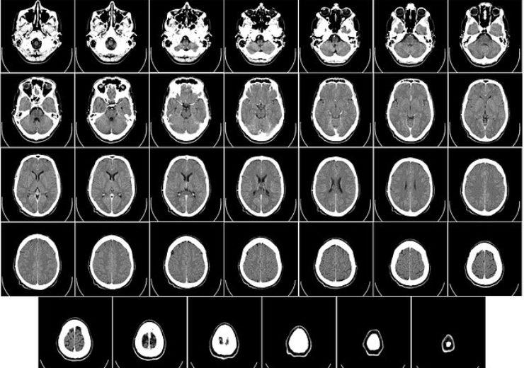 computer-tomography-62942_640