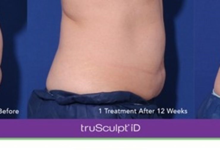 Cutera receives additional approval from Health Canada for truSculpt iD body sculpting technology
