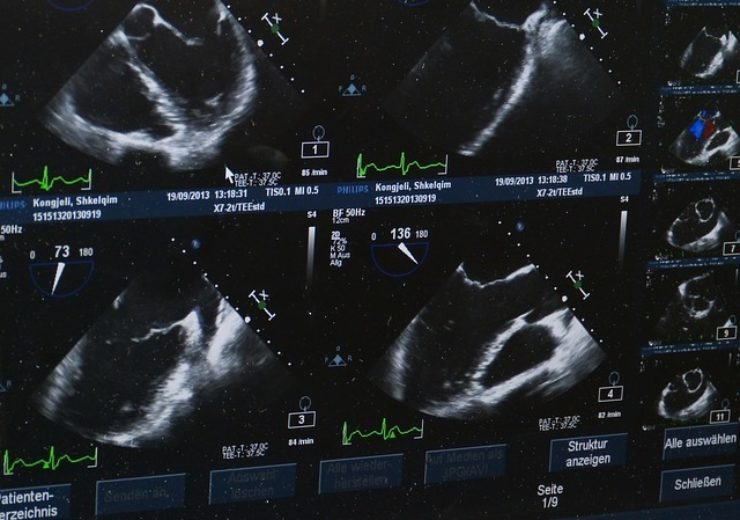 ultrasound-509396_640