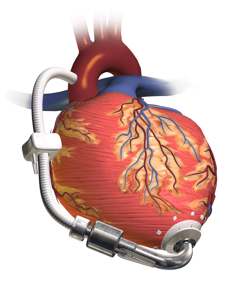 chronic heart failure diagnosis