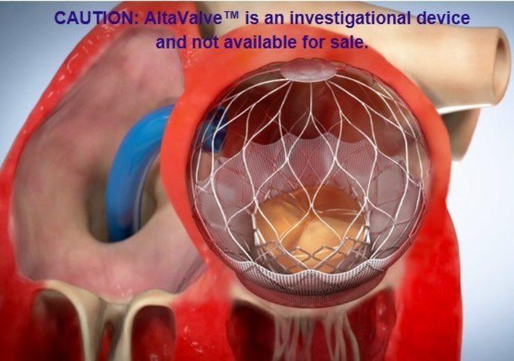 AltaValve 4C Medical