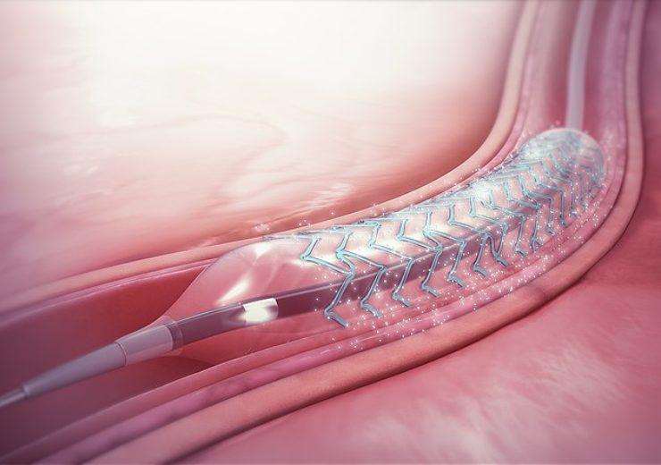800px-Drug-eluting_stent
