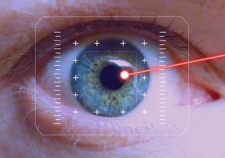 ELT Sight acquires  Excimer ophthalmic laser system assets from MLase