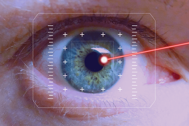 Image: ELT Sight acquires MLase's Excimer ophthalmic laser system. Photo: Courtesy of Hebi B. from Pixabay.