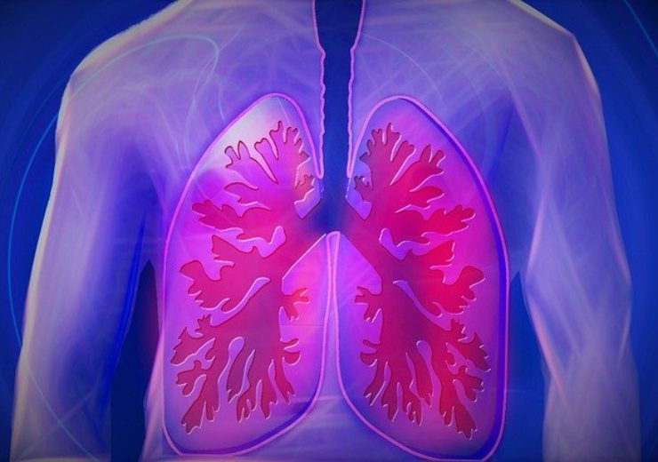 COPD outcomes improved significantly when patients and doctors used digital health tool, Propeller Health study finds