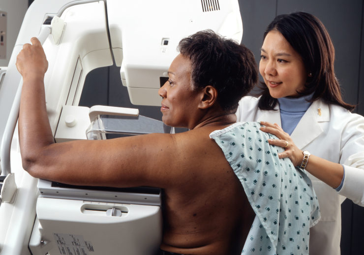In favour of mammography: Study involving 50,000 women shows importance of scans in breast cancer diagnosis