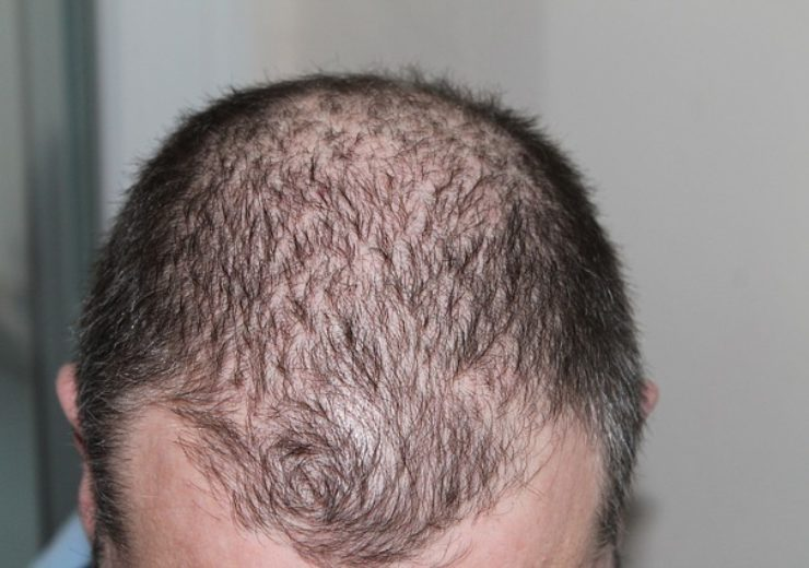 REVIAN presents clinical trial results for new hair loss treatment