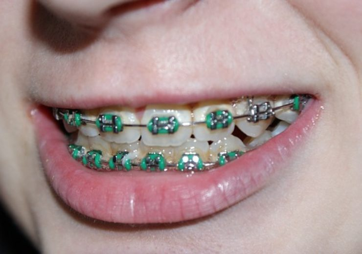 Western Dental introduces ClearArc orthodontic aligners
