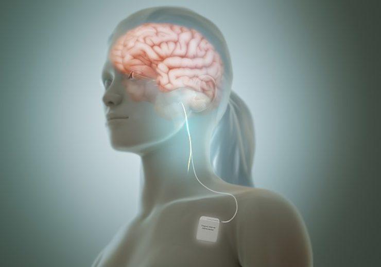 800px-Vagus_nerve_stimulation