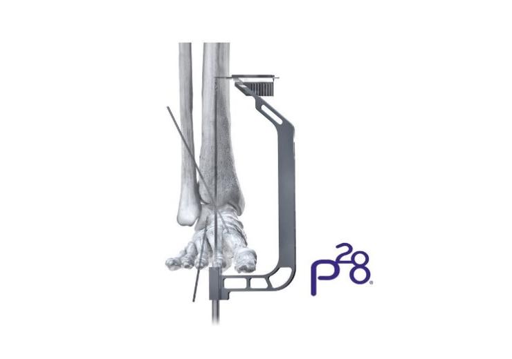 Paragon 28 announces launch of Phantom Hindfoot TTC/TC system to address TTC and TC arthrodesis