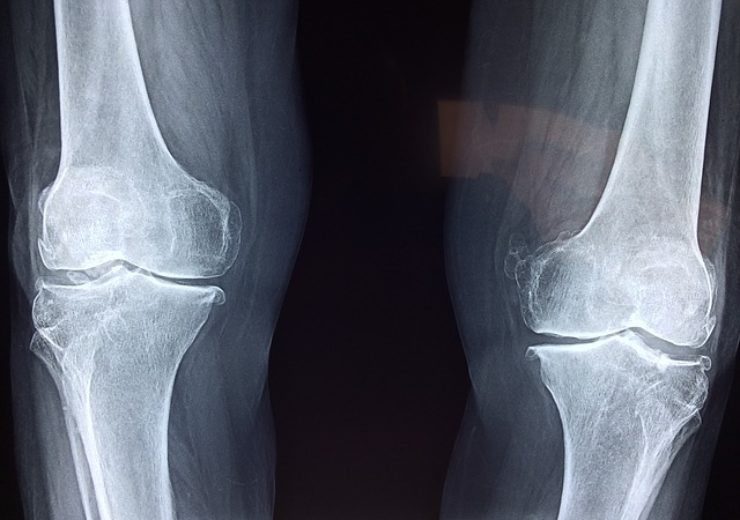 INOV8 Surgical is first health care facility in Texas to acquire TSolution One total knee application by THINK Surgical for total knee replacement procedures