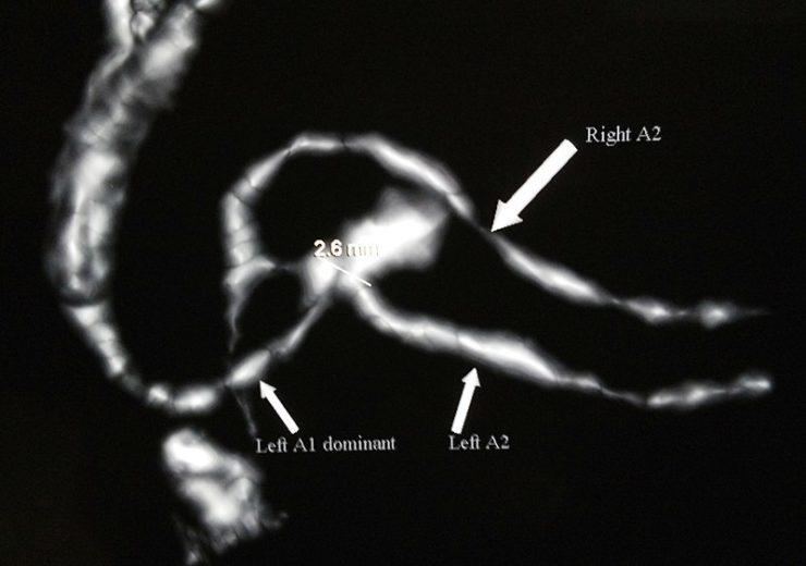 Cerus Endovascular