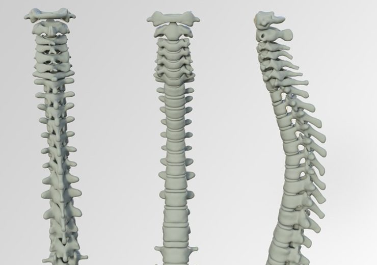 spine-3220105_640