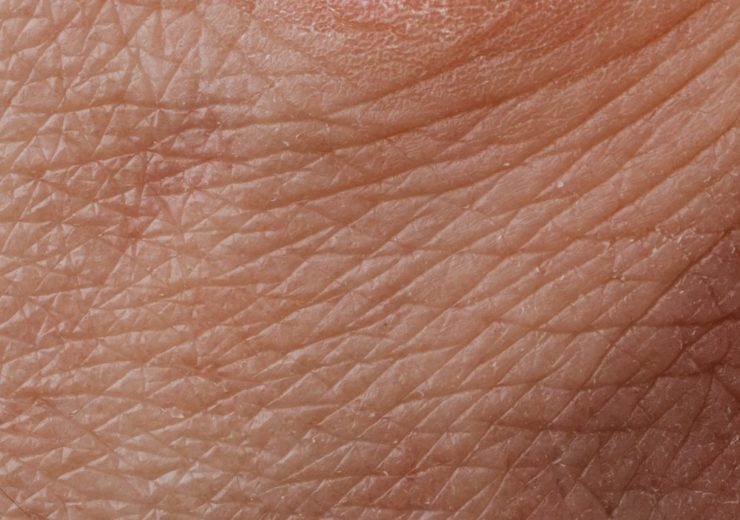 close-up-view-of-human-dry-skin-4046564