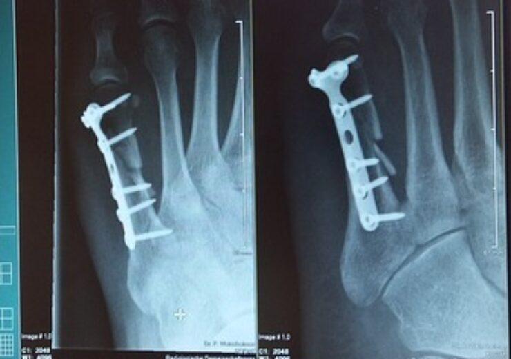 x-ray-924237_640