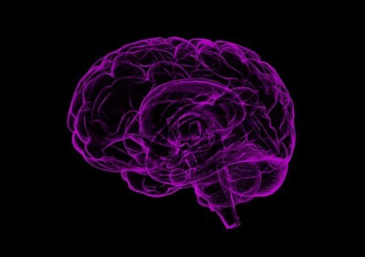 Brain device