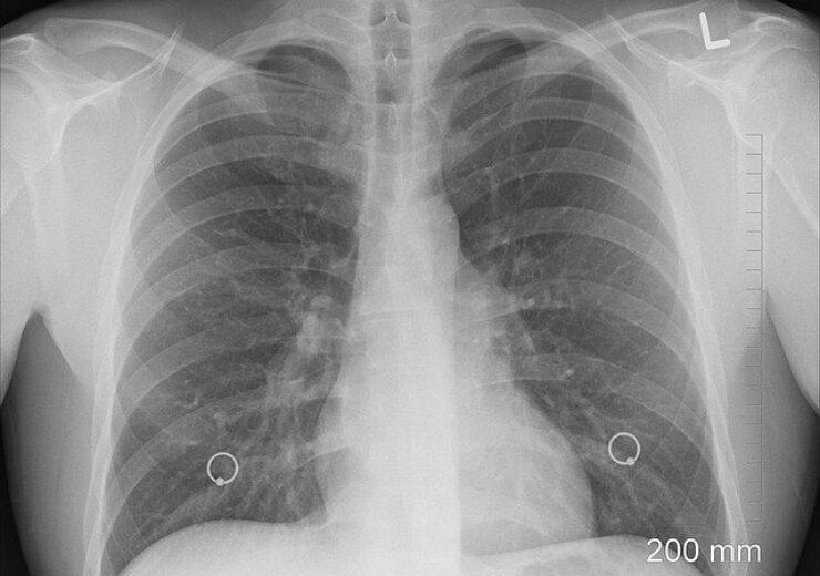 diagnosis-1476620_640