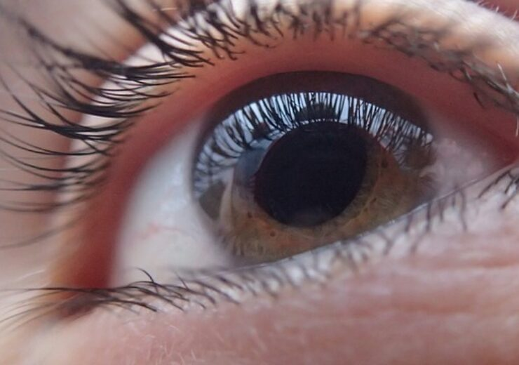 AEYE Health and Optomed to introduce handheld AI fundus camera