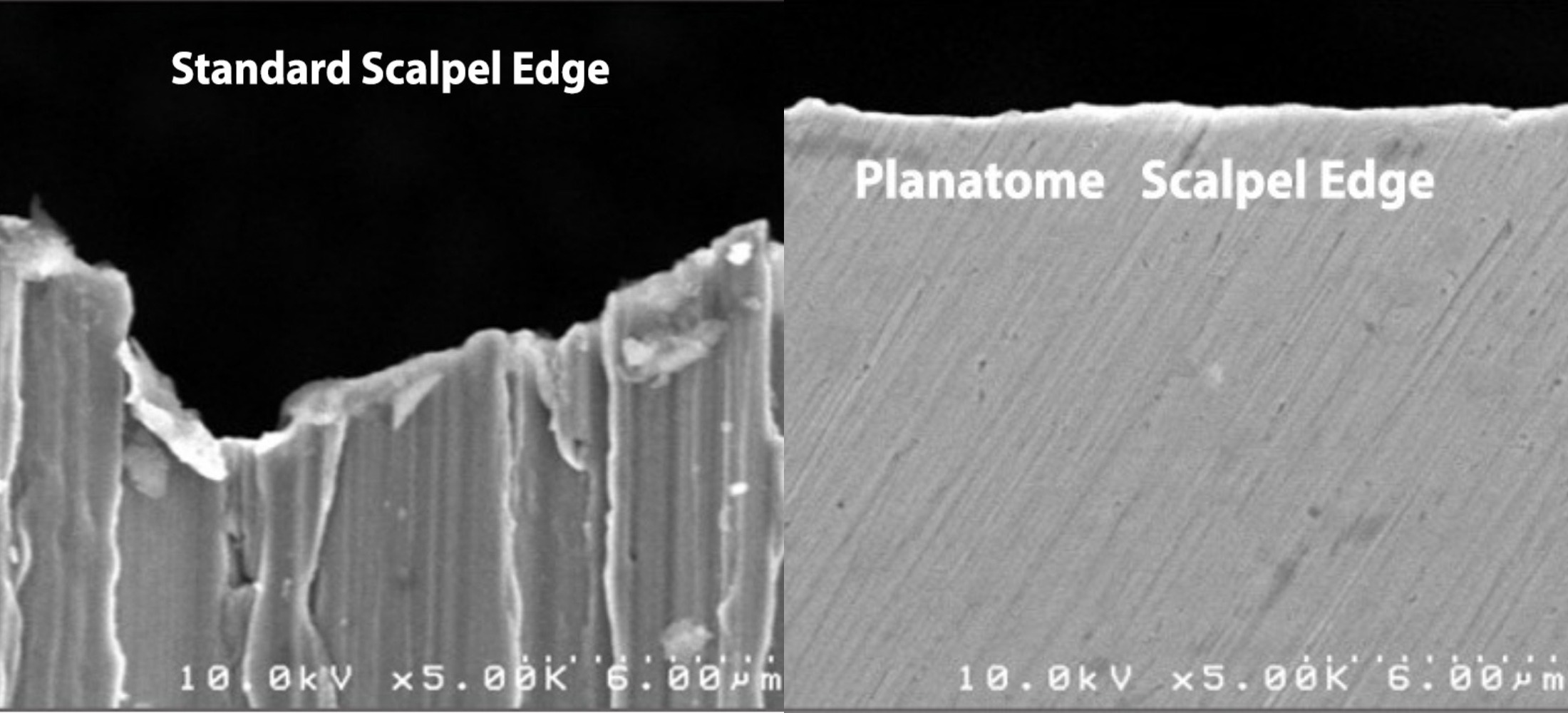 entrepix medical planatome